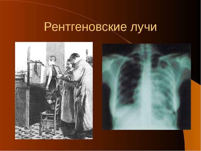 Рентгеновские лучи