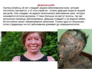 Девушка-рыба Хантер Штайниц 18 лет страдает редким заболеванием кожи, которая
