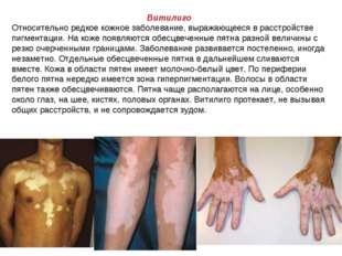 Витилиго Относительно редкое кожное заболевание, выражающееся в расстройстве