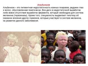 Альбинизм Альбинизм – это пигментная недостаточность кожных покровов, радужки
