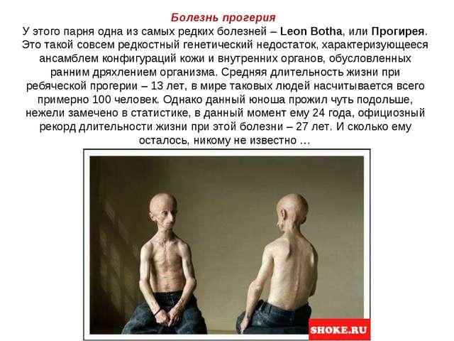 Болезнь прогерия У этого парня одна из самых редких болезней –Leon Botha, ил...