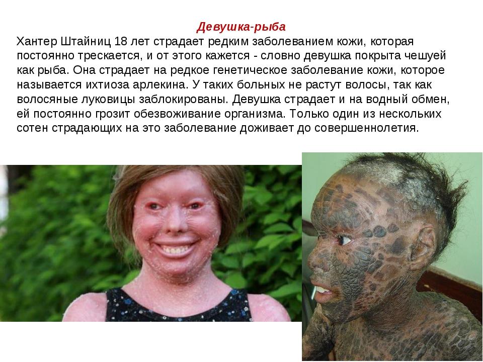 Девушка-рыба Хантер Штайниц 18 лет страдает редким заболеванием кожи, которая...