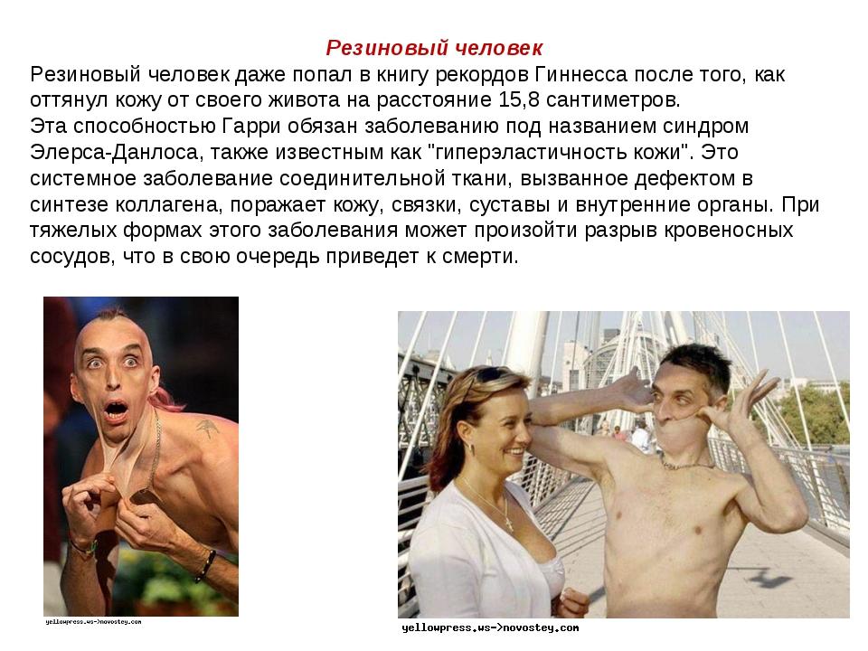 Резиновый человек Резиновый человек даже попал в книгу рекордов Гиннесса посл...