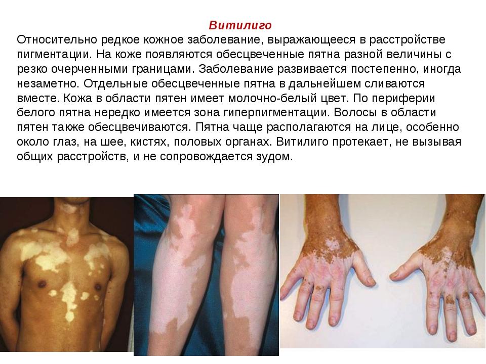 Витилиго Относительно редкое кожное заболевание, выражающееся в расстройстве...