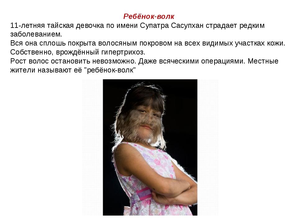 Ребёнок-волк 11-летняя тайская девочка по имени Супатра Сасупхан страдает ред...