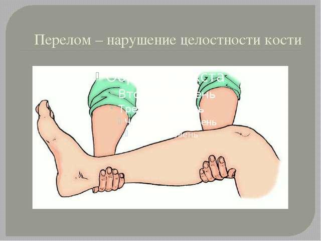 Перелом – нарушение целостности кости