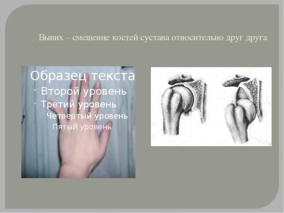 Вывих – смещение костей сустава относительно друг друга
