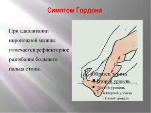 Симптом Гордона При сдавливании икроножной мышцы отмечается рефлекторное разг