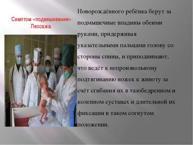 Симптом «подвешивания» Лессажа. Новорождённого ребёнка берут за подмышечные в...