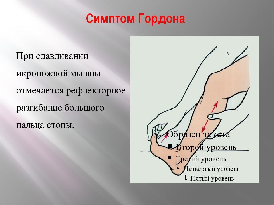 Симптом Гордона При сдавливании икроножной мышцы отмечается рефлекторное разг...