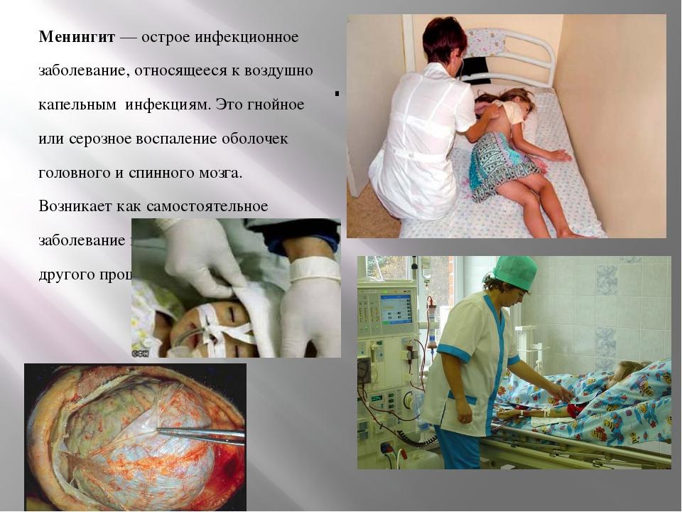 . Менингит — острое инфекционное заболевание, относящееся к воздушно капель...