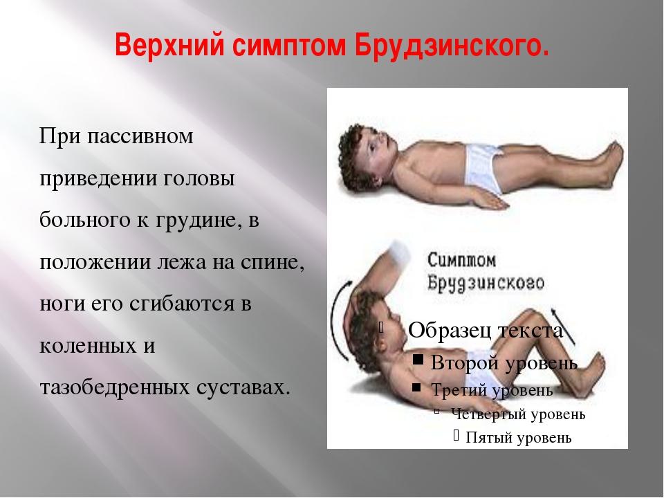 Верхний симптом Брудзинского. При пассивном приведении головы больного к груд...