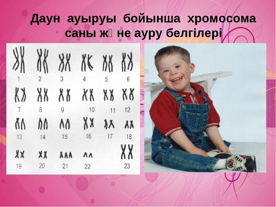 Даун ауыруы бойынша хромосома саны және ауру белгілері