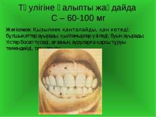 Тәулігіне қалыпты жағдайда С – 60-100 мг Жетіспесе: Қызылиек қанталайды, қан