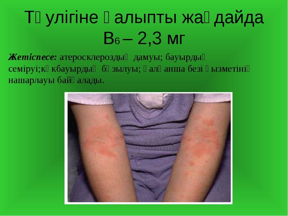 Тәулігіне қалыпты жағдайда В6 – 2,3 мг Жетіспесе: атеросклероздың дамуы; бауы...