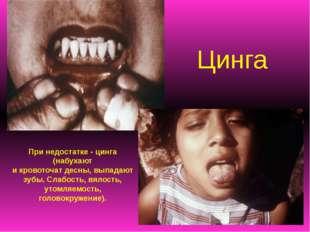 Цинга При недостатке - цинга (набухают и кровоточат десны, выпадают зубы. Сла