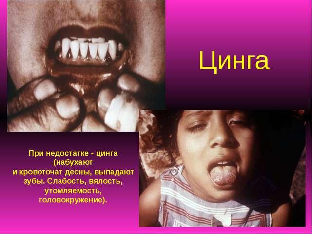 Цинга При недостатке - цинга (набухают и кровоточат десны, выпадают зубы. Сла...