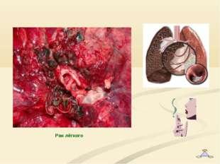 Рак лёгкого