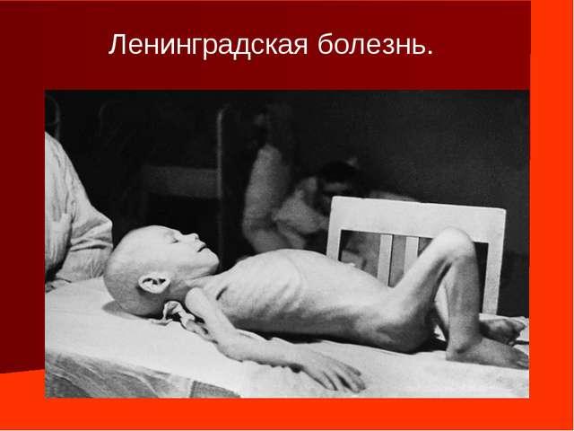 Ленинградская болезнь.