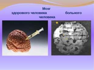 Мозг здорового человека больного человека