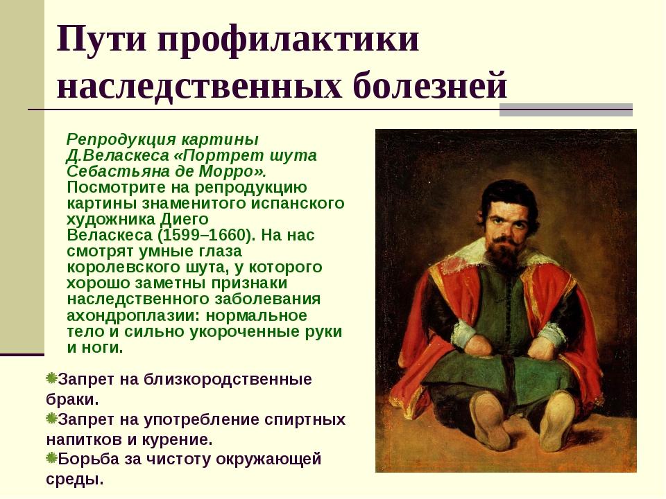 Репродукция картины Д.Веласкеса «Портрет шута Себастьяна де Морро». Посмотрит...