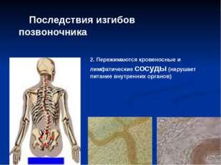Последствия изгибов позвоночника 2. Пережимаются кровеносные и лимфатические