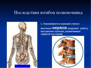 1. Пережимаются корешки спинно-мозговых нервов (нарушает работу внутренних ор