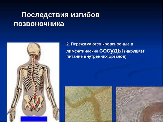 Последствия изгибов позвоночника 2. Пережимаются кровеносные и лимфатические...