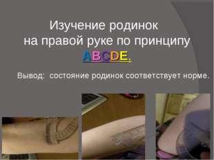 Изучение родинок на правой руке по принципу ABCDE. Вывод: состояние родинок с