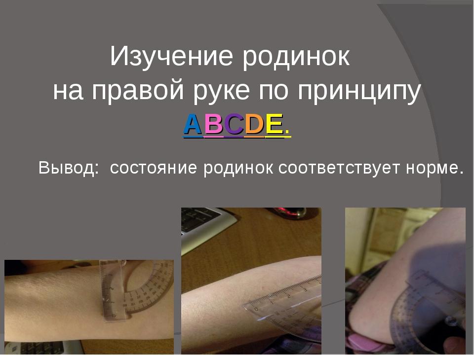 Изучение родинок на правой руке по принципу ABCDE. Вывод: состояние родинок с...