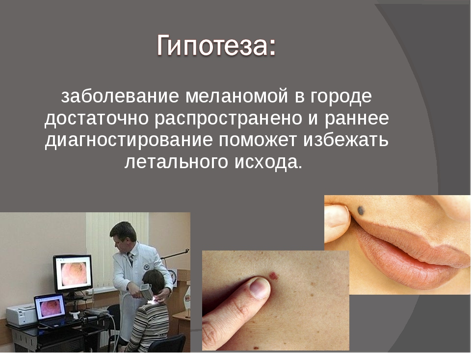 заболевание меланомой в городе достаточно распространено и раннее диагностиро...