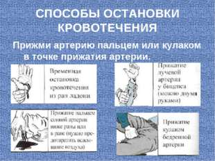 СПОСОБЫ ОСТАНОВКИ КРОВОТЕЧЕНИЯ Прижми артерию пальцем или кулаком в точке при