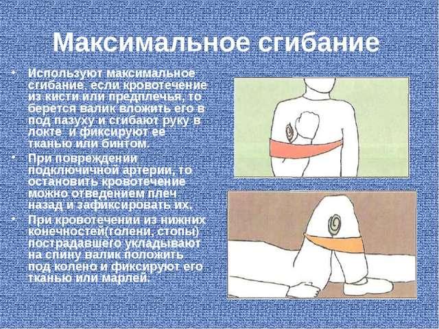 Максимальное сгибание Используют максимальное сгибание, если кровотечение из...