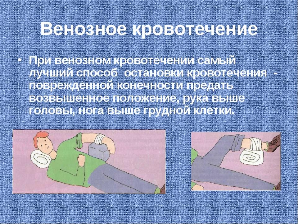 Венозное кровотечение При венозном кровотечении самый лучший способ остановки...