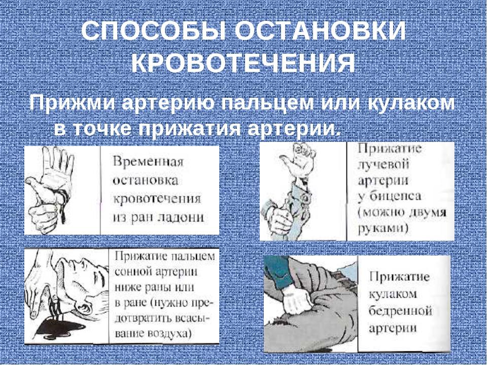 СПОСОБЫ ОСТАНОВКИ КРОВОТЕЧЕНИЯ Прижми артерию пальцем или кулаком в точке при...