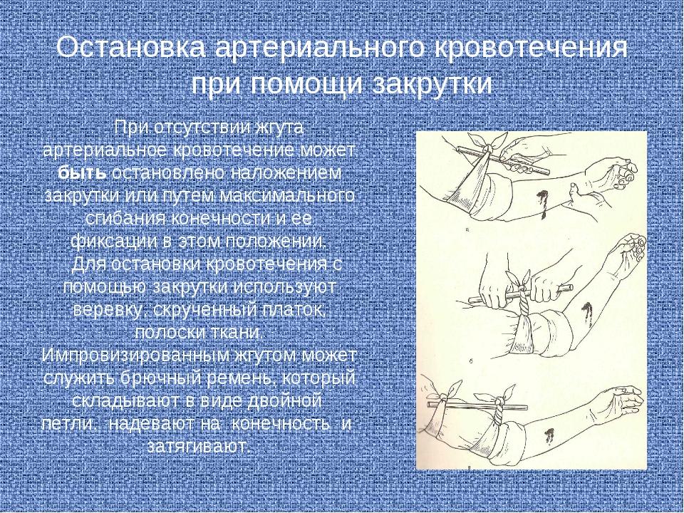 Остановка артериального кровотечения при помощи закрутки При отсутствии жгута...