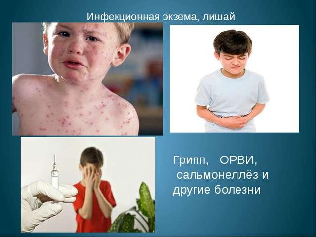 Инфекционная экзема, лишай Грипп, ОРВИ, сальмонеллёз и другие болезни