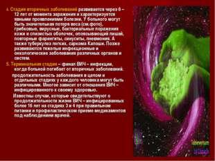 4. Стадия вторичных заболеваний развивается через 6 – 12 лет от момента зара