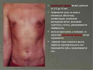 вторичный период может длиться от 2-5 до 10 лет; появляется сыпь на коже и с