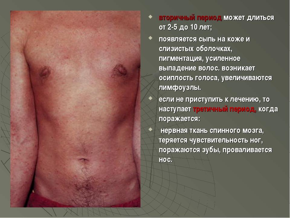 вторичный период может длиться от 2-5 до 10 лет; появляется сыпь на коже и с...