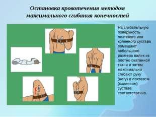 Остановка кровотечения методом максимального сгибания конечностей На сгибате