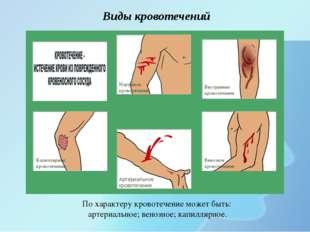 Виды кровотечений Артериальное кровотечение Венозное кровотечение Внутреннее