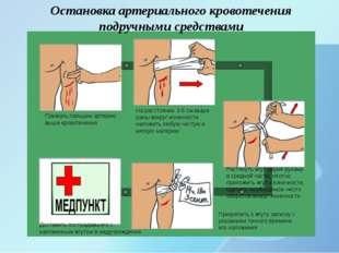 Остановка артериального кровотечения подручными средствами Прижать пальцем а