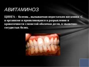 ЦИНГА - болезнь , вызываемая недостатком витамина С в организме и проявляющая