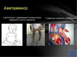 Авитаминоз У детей рахит, деформация позвоночника, Задержка в росте и развит