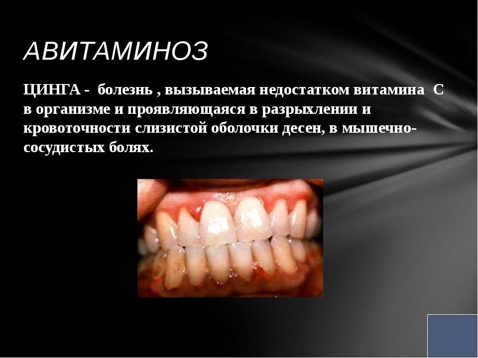 ЦИНГА - болезнь , вызываемая недостатком витамина С в организме и проявляющая...