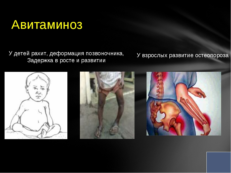 Авитаминоз У детей рахит, деформация позвоночника, Задержка в росте и развит...