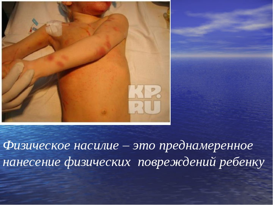 Физическое насилие – это преднамеренное нанесение физических повреждений ребе...