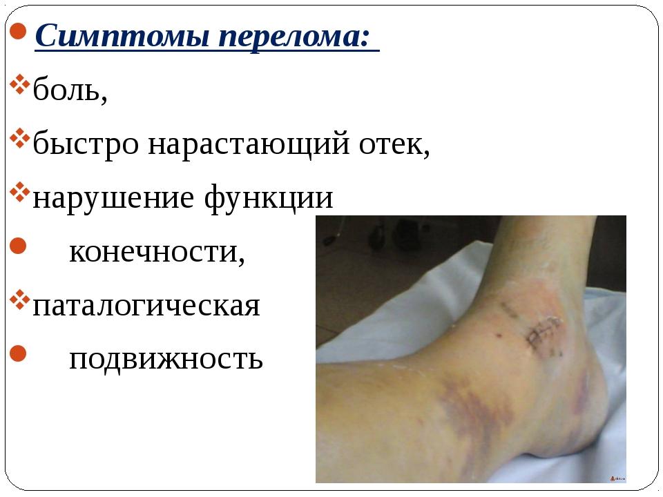 Симптомы перелома: боль, быстро нарастающий отек, нарушение функции конечност...