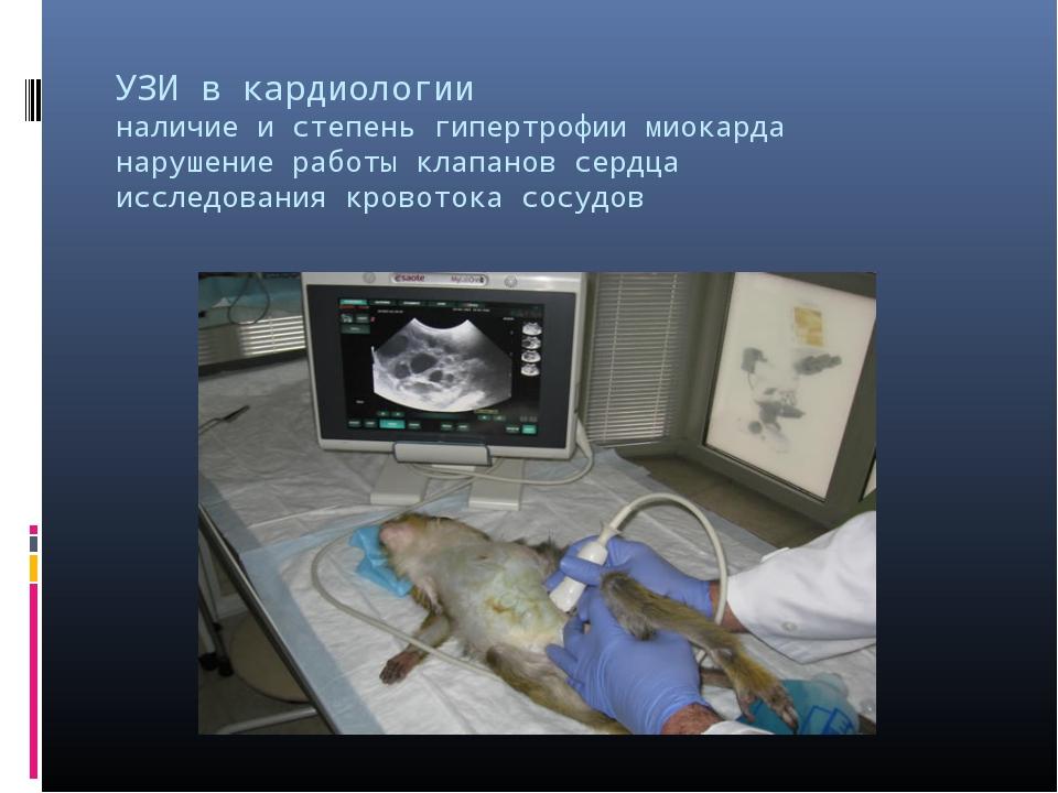 УЗИ в кардиологии наличие и степень гипертрофии миокарда нарушение работы кла...